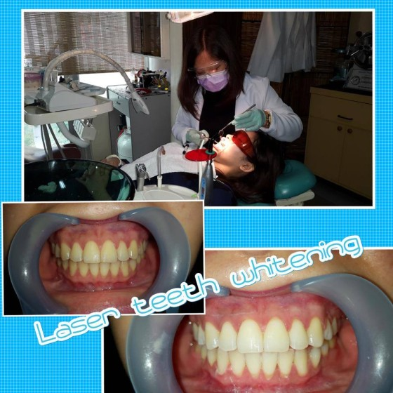 laser teeth whitening by dentist Makati or Makati Dental Clinic
