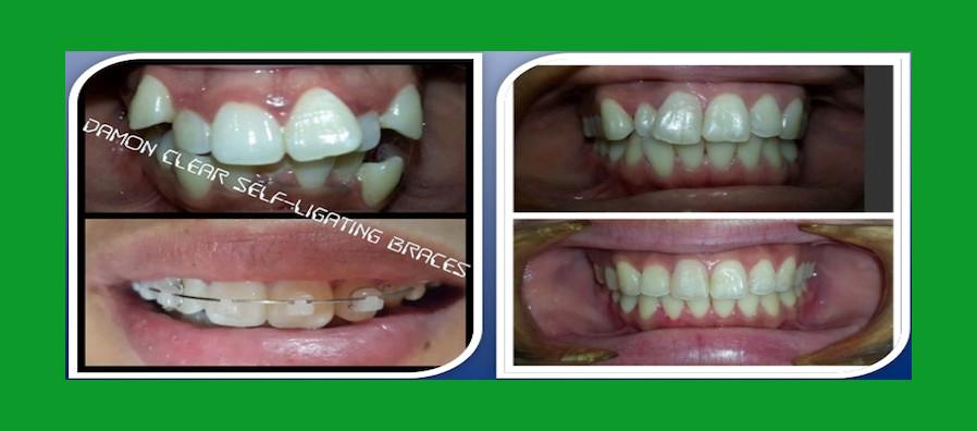 Braces – Dentist in Makati